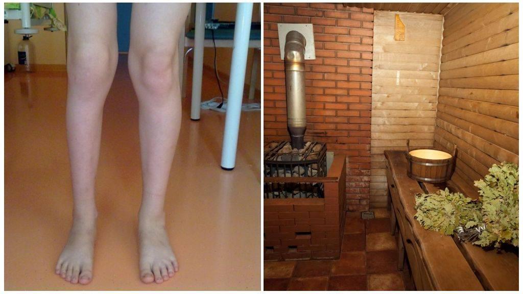 Баня при артрозе и других болезнях суставов. Все «за» и «против»