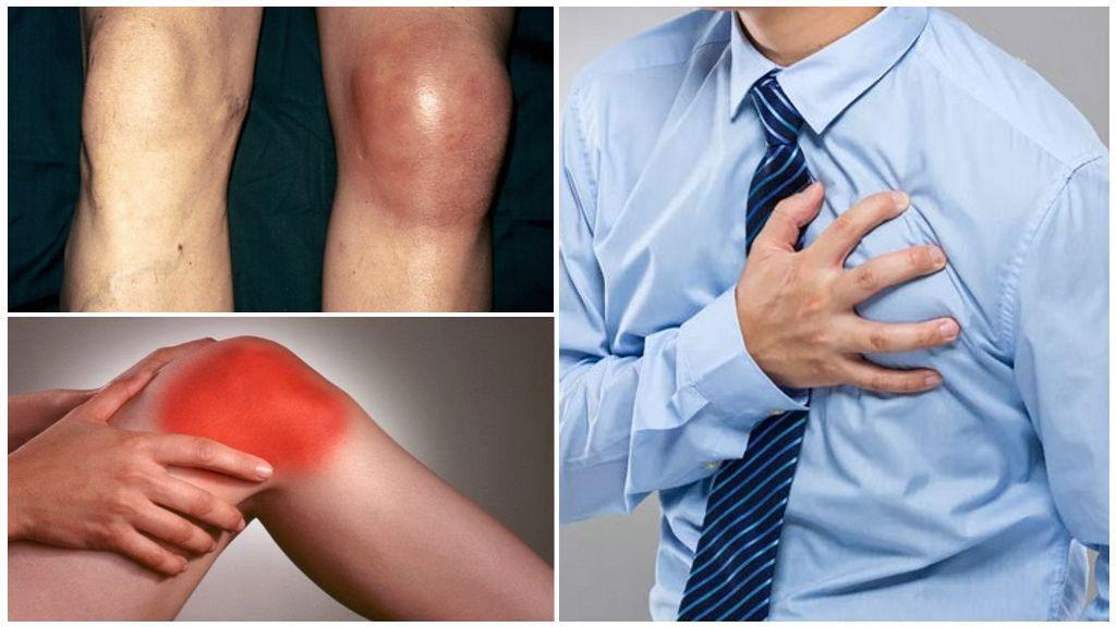 Баня для суставов: польза и вред при артрозе и воспалении