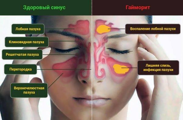 Можно ли ходить в баню или сауну при гайморите pulmono.ru можно ли ходить в баню или сауну при гайморите