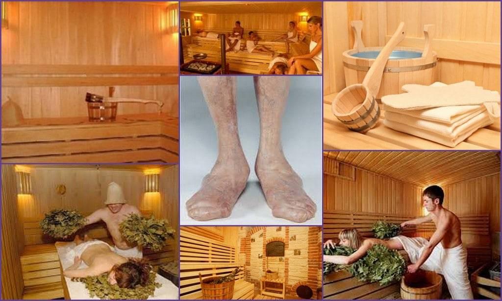 Баня при аллергии. в каких случаях поможет? ответы от экспертов sauna.spb.ru