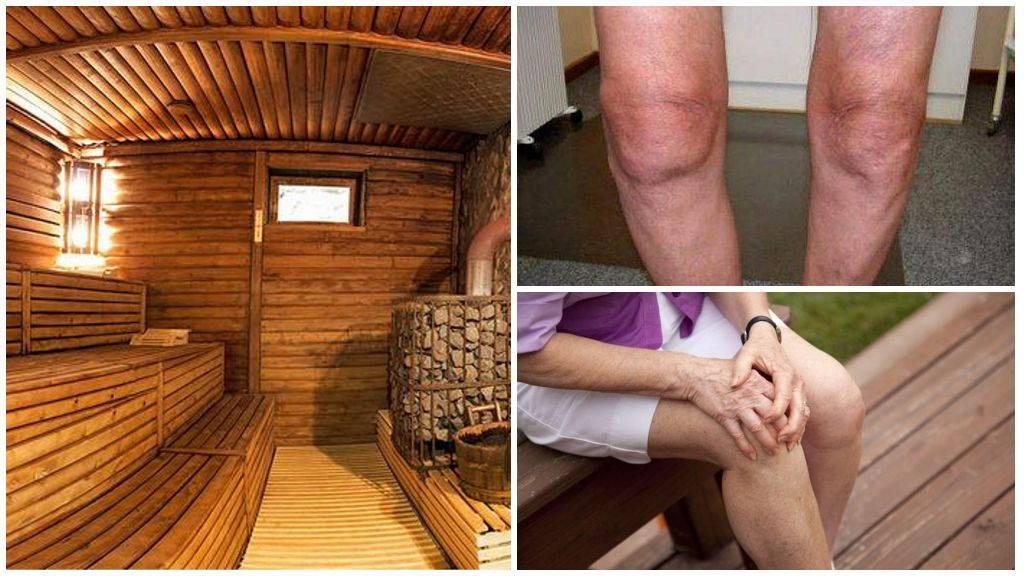 Остеохондроз и баня: польза и вред